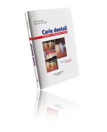 Carie Dentali Malattie e trattamento clinico